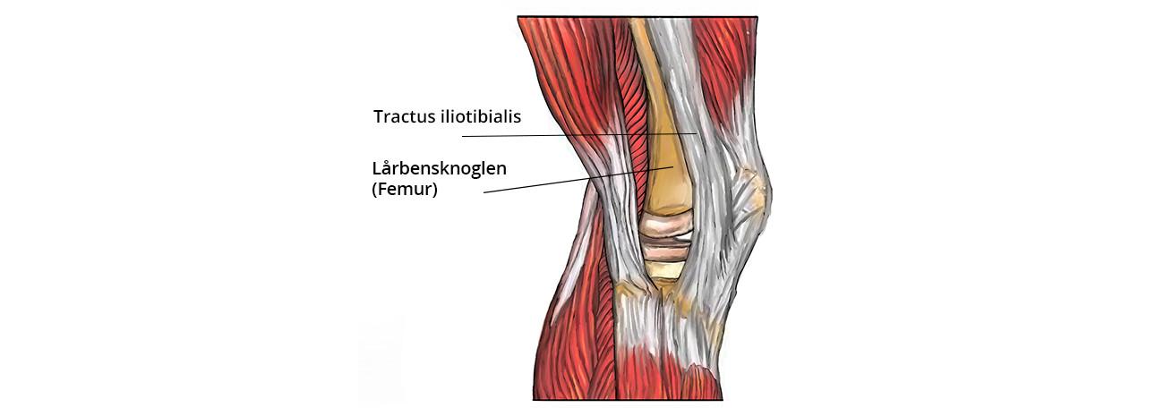 Tractus iliotibialis knæskade løberknæ