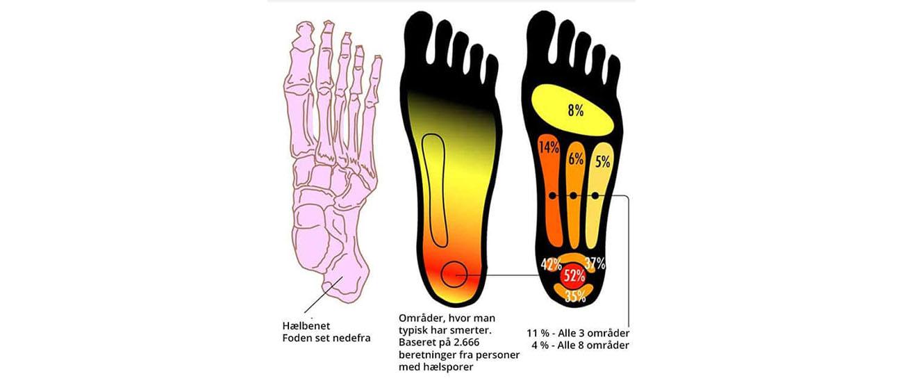Bookanaut hælspore ondt i hælen hælspore behandling hælespore hælspore øvelser fasciitis plantaris hælsporeindlæg smerter i hælen hælsporer smerter under foden hvad er hælspore fascia plantaris hælspore operation ondt i svangen svangsenebetændelse hælesporer hælspore tape hvad er en hælspore betændelse i hælen øm hæl smerter i svangen hælespor indlæg til hælspore smerter i hæl hælspor skoindlæg hæl behandling hælspore hælen smerter under hælen ondt i hælen efter løb ondt i hælen om morgenen inflammation i foden ondt under fødderne om morgenen fascitis plantaris smerter under foden svangen øvelser mod hælspore hælsporre smerter i hælen efter hvile smerte i hæl symptomer på hælspore betændelse under foden smerter i hælen når jeg går hælspore skoindlæg ondt i hælen ved løb akupunktur hælspore akupunktur mod hælspore fasciitis plantaris behandling smerter hæl øvelser for hælspore øm hæl efter løb øvelser til hælspore gele hælindlæg smerter i fødderne efter hvile senebetændelse fod hæl smerter ondt i hælen når jeg går senebetændelse i foden ondt i hælen ved gang plantar fasciitis behandling hælspore smerter fasciitis plantaris øvelser hælspore løb hvad er en bandagist indlæg mod hælspore facitis plantaris smerter under fødderne om morgenen smerter i svangsenen gel hælindlæg smerter i foden efter hvile hælespor hælsporer hælesporer hælesporre hældpore hælspore hølspore
